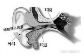 耳朵进蟑螂可以用杀虫剂吗?